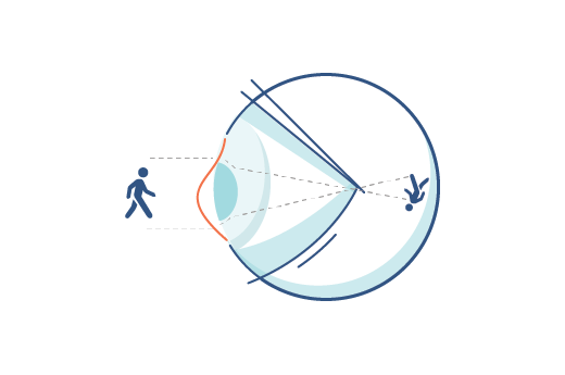 acuvue-astigmatism-eye-illustration.png